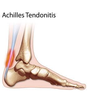 Achilles Tendonitis The Facts